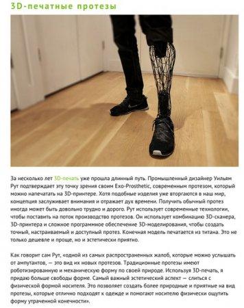 3D протезы