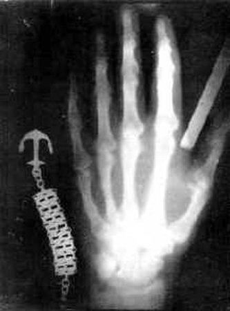 Первый снимок в X–лучах, левая рука Вильгельма Рёнтгена, 1895
